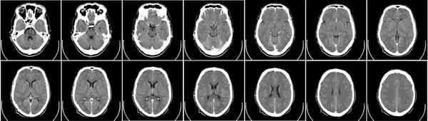 CT_MedicalImaging