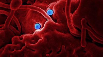 MOF-based biosensors